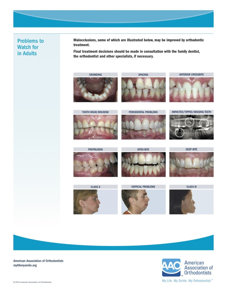 Orthodontic Problems to Watch for in Adults