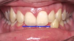 Anterior Crossbite Correction Time Lapse Video by Kyger Orthodontics