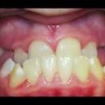 Underbite Correction, Orthodontics, Facemask