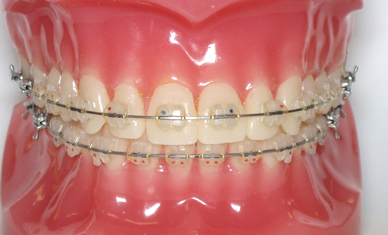 How Orthodontic Braces Work Kyger Orthodontics Blogkyger