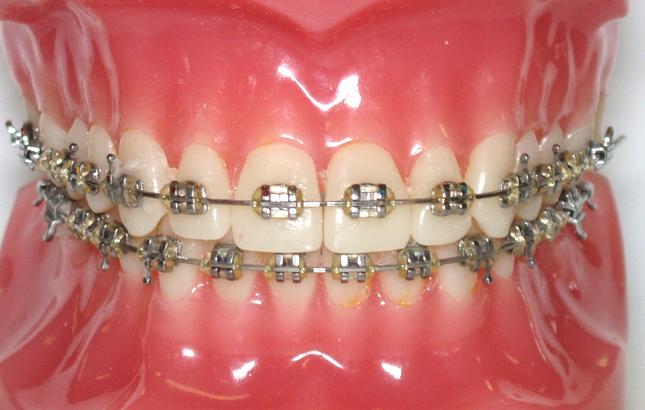 Orthodontics Braces Brackets